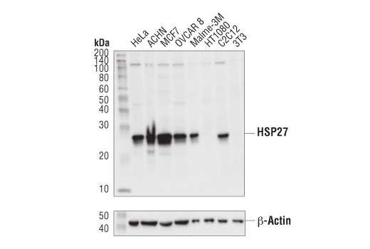 Western blot analysis of extracts from various cell lines using HSP27 (E1J4D) Rabbit mAb (IHC Preferred) (upper) or β-Actin (D6A8) Rabbit mAb #8457 (lower).