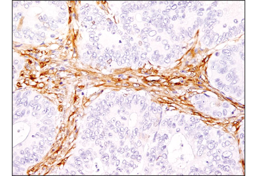 Immunohistochemical analysis of paraffin-embedded human colon carcinoma using HSP27 (E1J4D) Rabbit mAb (IHC Preferred).