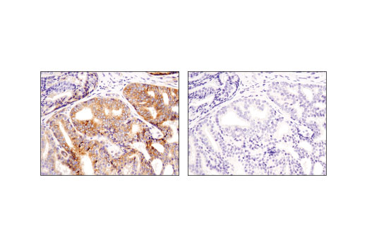 Immunohistochemical analysis of paraffin-embedded human prostate carcinoma using Jagged1 (D4Y1R) XP(R) Rabbit mAb in the presence of control peptide (left) or antigen-specific peptide (right).
