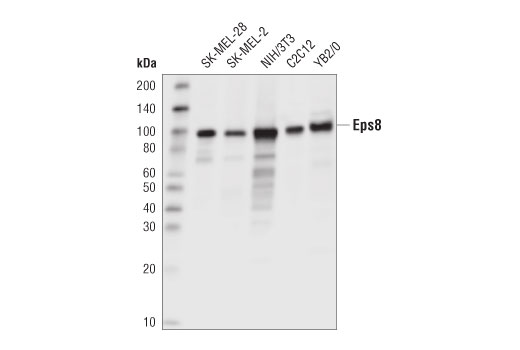 Western blot analysis of extracts from various cell lines using Eps8 (D1X1L) Rabbit mAb.