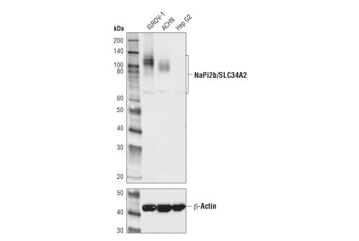 Western blot analysis of extracts from IGROV1, ACHN and HepG2 using NaPi2b/SLC34A2 (D6W2G) Rabbit mAb and beta-Actin (13E5) Rabbit mAb #4970.