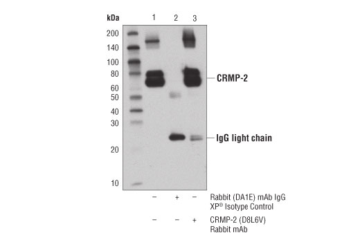 Immunoprecipitation of CRMP-2 from SH-SY5Y extracts. Lane 1 is 10% input, lane 2 is Rabbit (DA1E) mAb IgG XP<sup>®</sup> Isotype Control #3900, and lane 3 is CRMP-2 (D8L6V) Rabbit mAb. Western blot analysis was performed using CRMP-2 (D8L6V) Rabbit mAb.