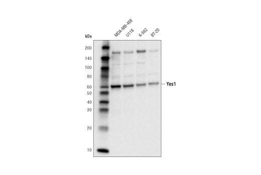 Monoclonal Antibody - Yes (D9P3E) Rabbit mAb - Immunoprecipitation, Western Blotting, UniProt ID P07947, Entrez ID 7525 #65890, Tyrosine Kinase / Adaptors