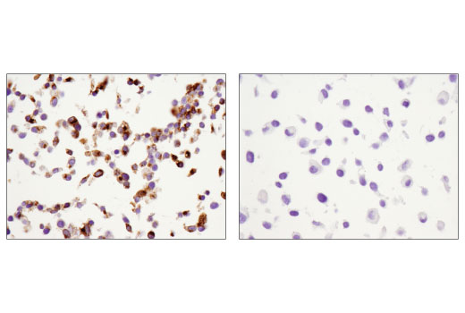 Immunohistochemical analysis of paraffin-embedded HepG2 (left) and SKMEL28 (right) cell pellets using IGFBP1 (D4E9T) XP<sup>® </sup>Rabbit mAb.