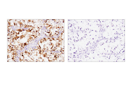 Immunohistochemical analysis of paraffin-embedded human endometrioid adenocarcinoma using IGFBP1 (D4E9T) XP<sup>® </sup>Rabbit mAb in the presence of control peptide (left) or antigen-specific peptide (right).