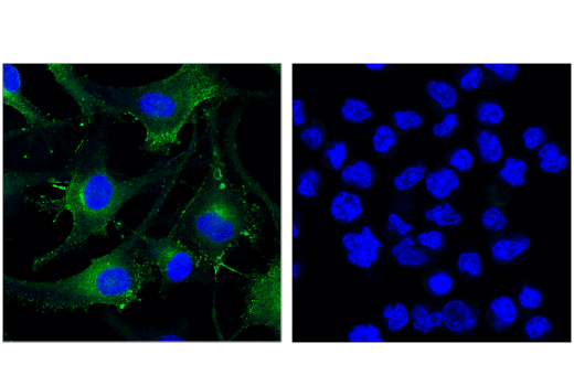 Confocal immunofluorescent analysis of SK-MEL-28 (left) and Raji (right) cells using Rab27A (D7Z9Q) Rabbit mAb (green). Blue pseudocolor = DRAQ5<sup>®</sup> #4084 (fluorescent DNA dye).