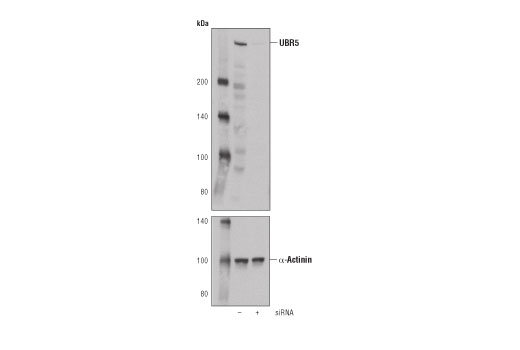Western blot analysis of extracts from 293T cells, mock transfected (-) or transfected with siRNA targeting human UBR5 (+), using UBR5 (D6O8Z) Rabbit mAb (upper) and α-Actinin (D6F6) XP<sup>®</sup> Rabbit mAb #6487 (lower).