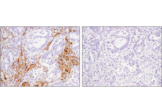 Immunohistochemical analysis of paraffin-embedded human invasive adenocarcinoma of the colon using Calponin 1 (D8L2T) XP<sup>®</sup> Rabbit mAb in the presence of control peptide (left) or antigen-specific peptide (right).