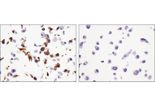 Immunohistochemical analysis of paraffin-embedded SNB75 cell pellet (left, positive) and MDA-MB-231 cell pellet (right, negative) using Calponin 1 (D8L2T) XP<sup>®</sup> Rabbit mAb.