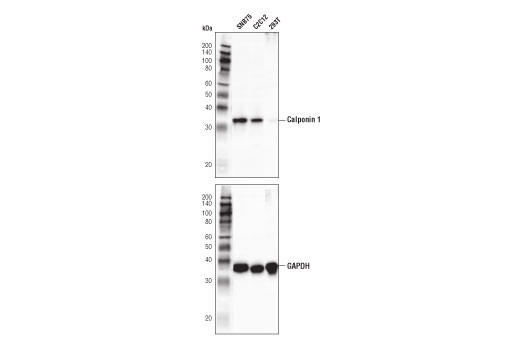 Western blot analysis of extracts from SNB75, C2C12, and 293T cells using Calponin 1 (D8L2T) XP<sup>®</sup> Rabbit mAb (upper) and GAPDH (D16H11) XP<sup>®</sup> Rabbit mAb #5174 (lower). 293T cells are negative as expected.
