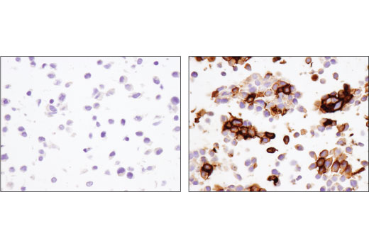Immunohistochemical analysis of paraffin-embedded 293 cell pellets, control (left) or PD-1 transfected (right), using PD-1 (D4W2J) XP<sup>®</sup> Rabbit mAb.
