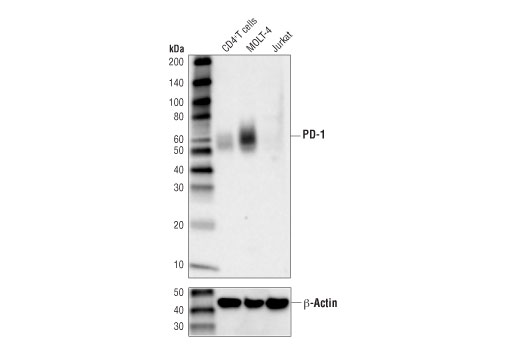 Western blot analysis of extracts from human CD4<sup>+</sup> T cells, MOLT-4, and Jurkat cells using PD-1 (D4W2J) XP<sup>®</sup> Rabbit mAb (upper), and β-Actin (D6A8) Rabbit mAb #8457 (lower). CD4<sup>+</sup> T cells were purified from human blood and stimulated for 9 days using beads coated with CD3 and CD28 antibodies in the presence of human interleukin-2 (hIL-2) #8907 (6.7 ng/ml).