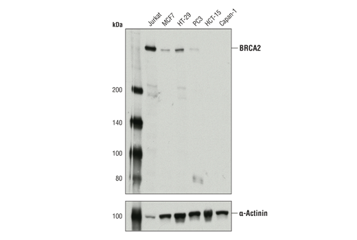 Western blot analysis of extracts from various cell lines using BRCA2 (D9S6V) Rabbit mAb (upper) or α-Actinin (D6F6) XP<sup>®</sup> Rabbit mAb #6487 (lower).