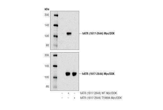 Polyclonal Antibody - Phospho-ATR (Thr1989) Antibody - Western Blotting, UniProt ID Q13535, Entrez ID 545 #58014