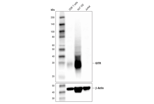 Western blot analysis of extracts from human CD8<sup>+</sup> T cells, HuT 102, and Jurkat cells using GITR (D9I9D) Rabbit mAb (IHC Preferred) (upper), and β-Actin (D6A8) Rabbit mAb #8457 (lower). CD8<sup>+</sup> T cells were purified from human blood and stimulated for 9 days using beads coated with CD3 and CD28 antibodies in the presence of human interleukin-2 (hIL-2) #8907 (6.7 ng/ml).