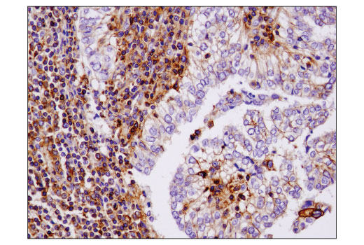breast:</p><p>Immunohistochemical analysis of paraffin-embedded human infiltrating papillary carcinoma of the breast using IQGAP1 (D8K4X) XP<sup>®</sup> Rabbit mAb.