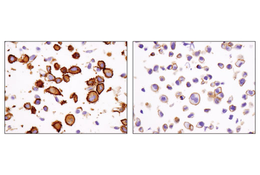 Immunohistochemical analysis of paraffin-embedded SK-MEL-28 (left) and LNCaP (right) cell pellets using IQGAP1 (D8K4X) XP<sup>®</sup> Rabbit mAb.
