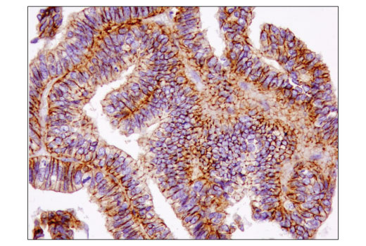 Immunohistochemical analysis of paraffin-embedded human ovarian carcinoma using IQGAP1 (D8K4X) XP<sup>®</sup> Rabbit mAb.