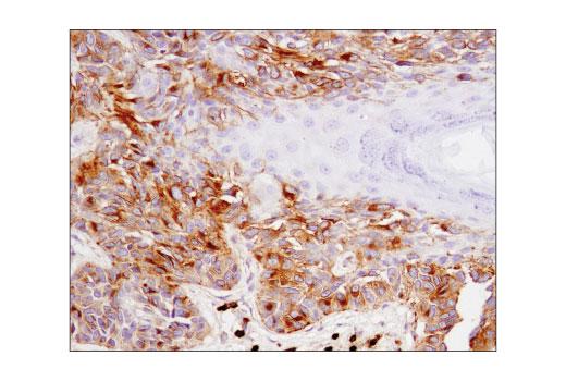 Immunohistochemical analysis of paraffin-embedded human melanoma using CD63 (D4I1X) Rabbit mAb (IHC Specific).
