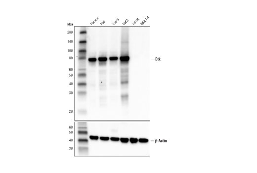 Western blot analysis of extracts from various cell lines using Btk (D6T2C) Mouse mAb (upper) and β-Actin (D6A8) Rabbit mAb #8457 (lower). Extracts from T cells (Jurkat and MOLT-4) are negative for Btk expression, demonstrating specificity of the antibody.