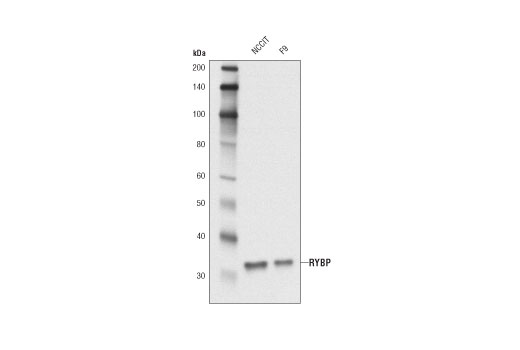 Mouse Pcg Protein Complex
