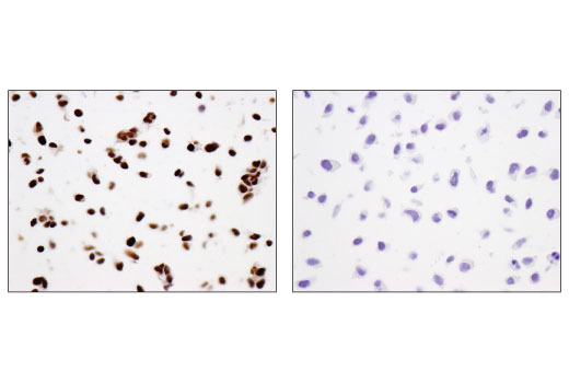 Immunohistochemical analysis of paraffin-embedded IMR-32 (left) and HeLa (right) cell pellets using N-Myc (D4B2Y) Rabbit mAb.