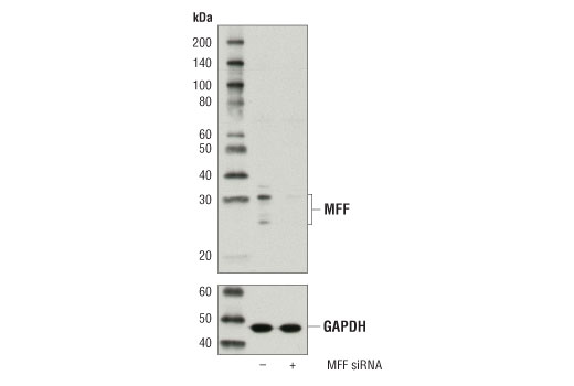 Western blot analysis of extracts from 293T cells, mock transfected (-) or transfected with siRNA targeting human MFF (+), using MFF Antibody (upper) and GAPDH (D16H11) XP<sup>®</sup> Rabbit mAb #5174 (lower).