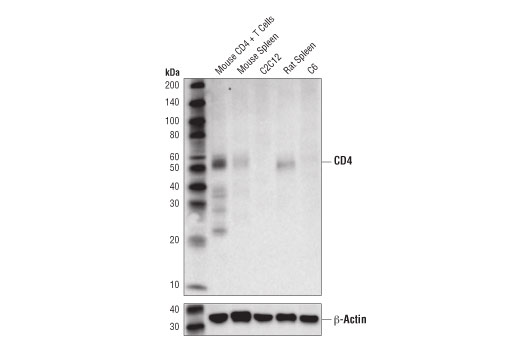 Western blot analysis of extracts from various cell lines and tissues using CD4 (D7D2Z) Rabbit mAb (upper) and β-Actin (D6A8) Rabbit mAb #8457 (lower).
