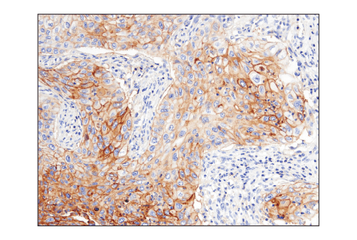Immunohistochemical analysis of paraffin-embedded human squamous cell lung carcinoma using CD47 (D3O7P) Rabbit mAb.
