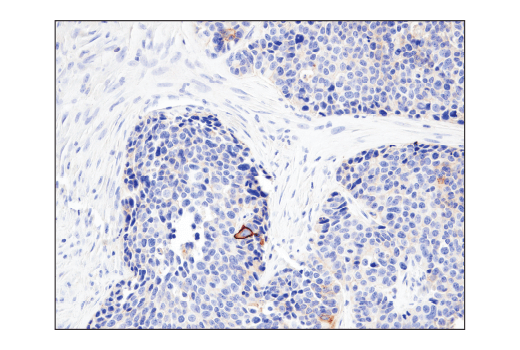 Immunohistochemical analysis of paraffin-embedded human colon carcinoma using CD47 (D3O7P) Rabbit mAb.