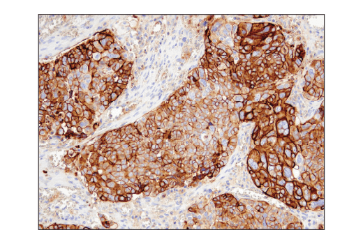 Immunohistochemical analysis of paraffin-embedded human ovarian serous carcinoma using CD47 (D3O7P) Rabbit mAb.