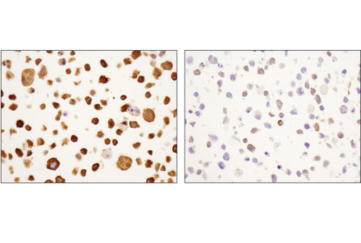 Image 36: Human Reactive Cell Death and Autophagy Antibody Sampler Kit