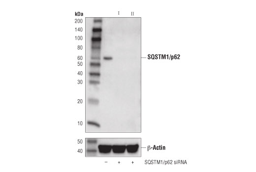Image 56: Human Reactive Cell Death and Autophagy Antibody Sampler Kit
