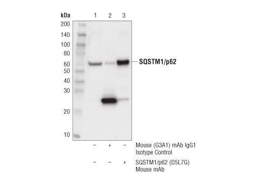 Immunoprecipitation of SQSTM1/p62 protein from PANC-1 cell extracts. Lane 1 is 10% input, lane 2 is Mouse (G3A1) mAb IgG1 Isotype Control #5415, and lane 3 is SQSTM1/p62 (D5L7G) Mouse mAb. Western blot was performed using SQSTM1/p62 (D5L7G) Mouse mAb. A light chain-specific secondary antibody was used to avoid reactivity with heavy chain IgG.