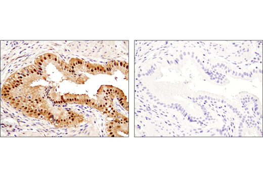 Image 40: Human Reactive Cell Death and Autophagy Antibody Sampler Kit