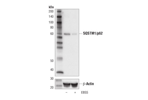 Western blot analysis of extract from HCT 116 cells, untreated (-) or starved with Earles Basic Salt Solution (EBSS; 4 hr; +) using SQSTM1/p62 (D5L7G) Mouse mAb (upper) or β-Actin (D6A8) Rabbit mAb #8457 (lower).