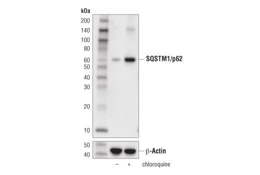 Western blot anlaysis of extracts from HeLa cells, untreated (-) or treated with Chloroquine #14774 (50 μM, overnight; +) using SQSTM1/p62 (D5L7G) Mouse mAb (upper) or β-Actin (D6A8) Rabbit mAb #8457 (lower).