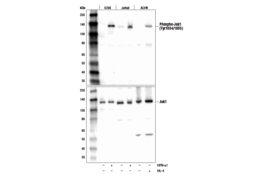 Western blot analysis of extracts from various cell lines, serum-starved overnight (-) followed by treatment with Human Interferon-α1 #8927 (hIFN-α1, 10 ng/ml, 15 min; +) or Human Interleukin-4 #8919 (hIL-4, 10 ng/ml, 10 min; +) using Phospho-Jak1 (Tyr1034/1035) (D7N4Z) Rabbit mAb (upper) or Jak1 (6G4) Rabbit mAb (lower).
