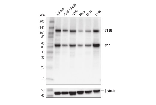 Western blot anlaysis of extracts from various cell lines using NF-κB2 p100/p52 (D7A9K) Rabbit mAb (upper) and β-Actin (D6A8) Rabbit mAb #8457 (lower). KARPAS cell line source: Dr. Abraham Karpas at the University of Cambridge.