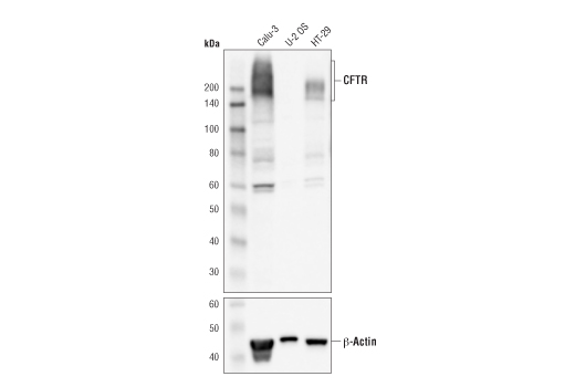 Western blot analysis of extracts from Calu-3, U-2 OS, and HT-29 cells, using CFTR (D6W6L) Rabbit mAb and β-Actin (D6A8) Rabbit mAb #8457.