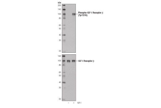 Polyclonal Antibody Insulin-Like Growth Factor Receptor Activity