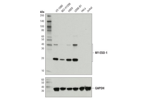 Western blot analysis of extracts from various cell lines using NY-ESO-1 (D1Q2U) Rabbit mAb (upper) and GAPDH (D16H11) XP® Rabbit mAb #5174 (lower). As expected, NY-ESO-1 protein is not detected in either HeLa cells or Jurkat cells.