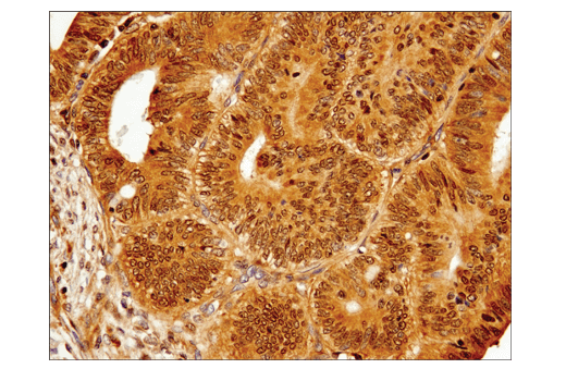 Immunohistochemical analysis of paraffin-embedded human colon carcinoma using IRF-3 (D9J5Q) Mouse mAb.