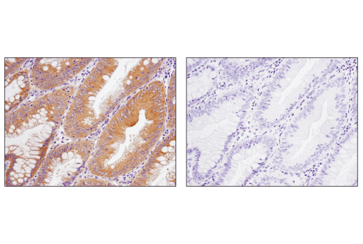 Immunohistochemical analysis of paraffin-embedded human colon carcinoma using Phospho-AMPKα (Thr172) (D4D6D) Rabbit mAb, control (left) or λ phosphatase-treated (right).