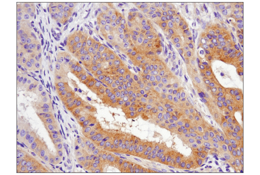 Immunohistochemical analysis of paraffin-embedded human ovarian carcinoma using Phospho-AMPKα (Thr172) (D4D6D) Rabbit mAb.