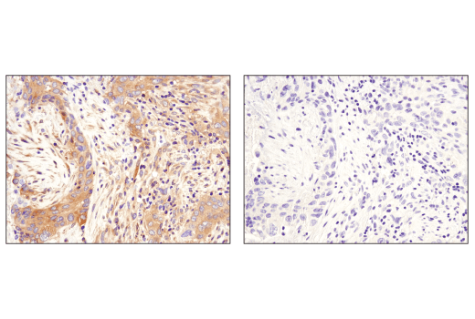 Immunohistochemical analysis of paraffin-embedded human lung carcinoma using Phospho-AMPKα (Thr172) (D4D6D) Rabbit mAb in the presence of control peptide (left) or antigen-specific peptide (right).