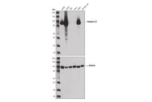 Western blot analysis of extracts from various cell lines using Integrin β2 (D4N5Z) Rabbit mAb (upper) or α-Actinin (D6F6) XP<sup>®</sup> Rabbit mAb #6487 (lower).