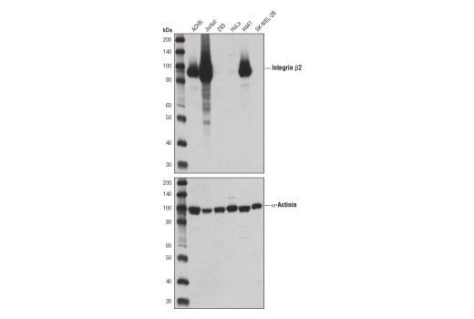 Monoclonal Antibody - Integrin β2 (D4N5Z) Rabbit mAb - Western Blotting, UniProt ID P05107, Entrez ID 3689 #73663, Itgb2