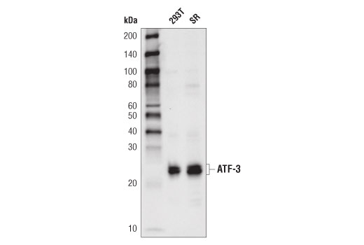 Western blot analysis of extracts from 293T and SR cells using ATF-3 (D2Y5W) Rabbit mAb.