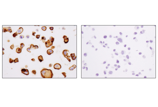 Immunohistochemical analysis of paraffin-embedded ZR-75-1 (left, positive) and HCT 116 (right, negative) cell pellets using MUC1-C (D5K9I) XP<sup>®</sup> Rabbit mAb.